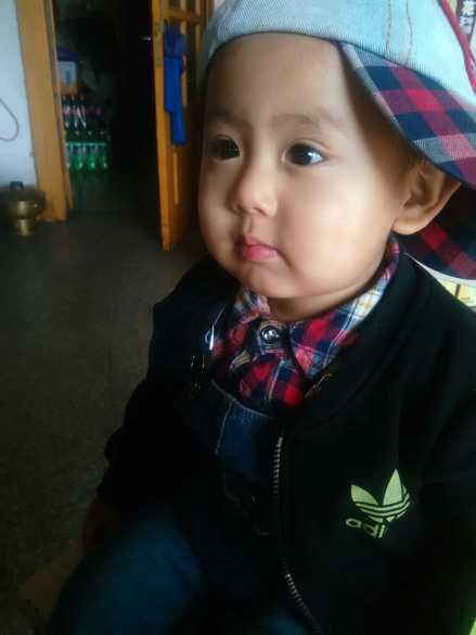 小儿过敏性咳嗽经验分享1