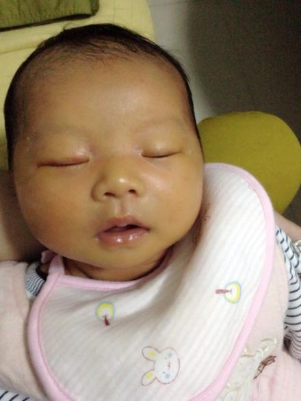 宝宝 黄疸/我家宝宝满月后都很黄,去打预防针都不打的,后面一测黄疸值,...