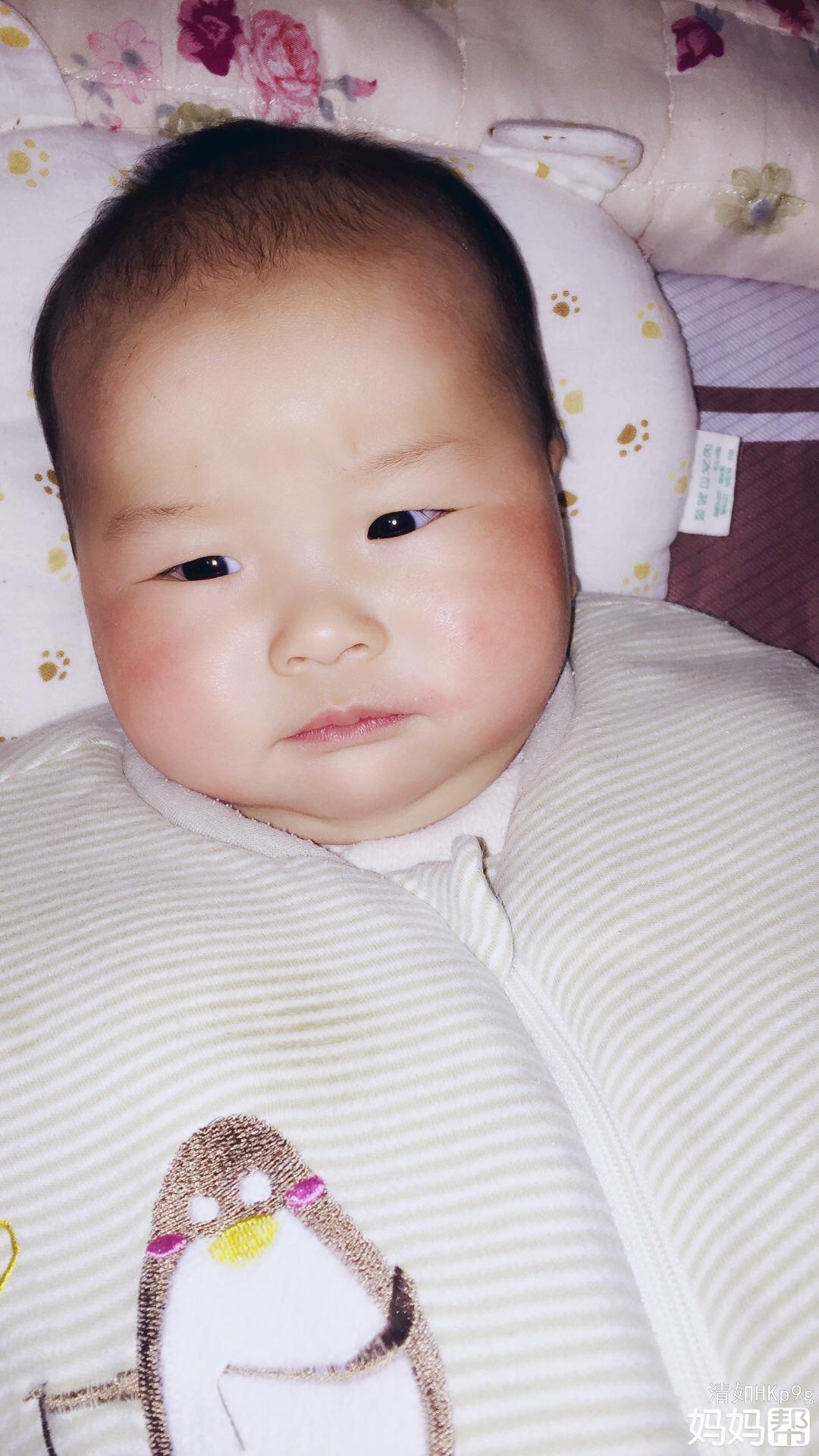 宝宝皮肤皲裂