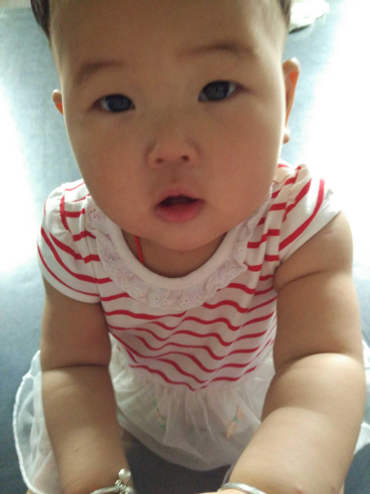 【成长指南】一岁女宝宝脸上有白斑怎么回事啊
